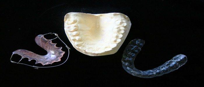 impronte-apparecchio-ortodontico-invisaling